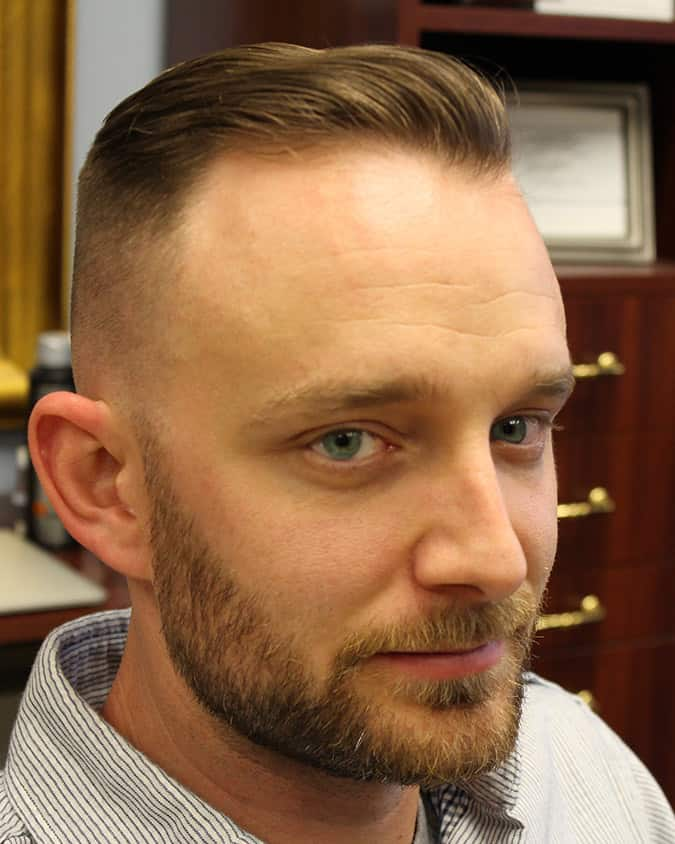 25 Perfect Receding Hairline Haircuts Hide The Bad Hairline