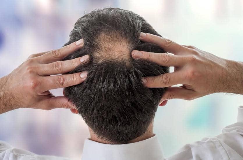 Bigen Hair Dye The Side Effects You Must Know