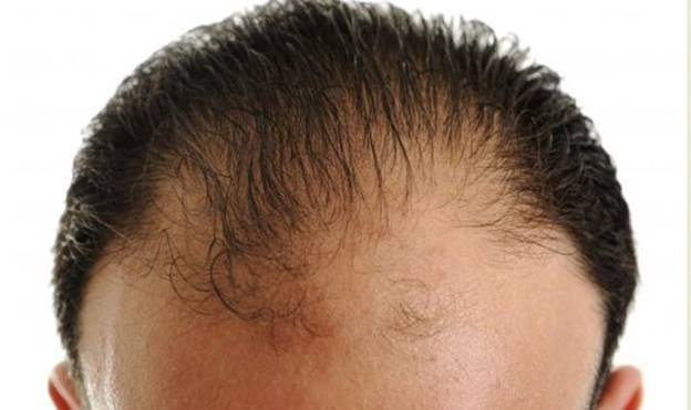 How To Tell If Hair Is Receding