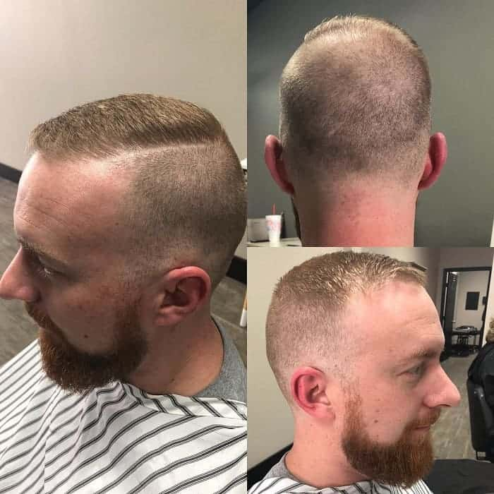 Bald Patch After Haircut - Haircuts Models Ideas
