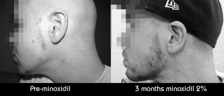 Minoxidil Or Rogaine Works For Beard Growth Fact Or Myth
