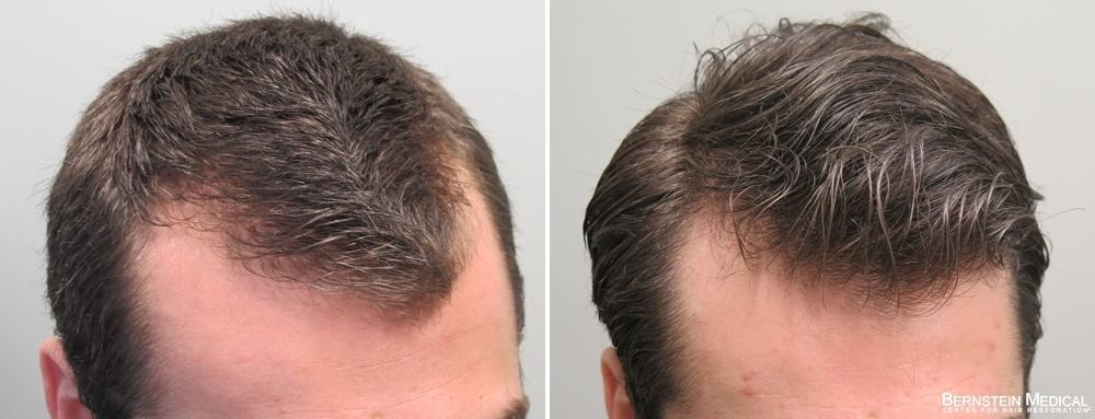 Rogaine For Receding Hairline 5 Super Important Facts